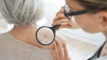 Dermatologist examining the skin on the back of an older woman for signs of sun damage or skin cancer