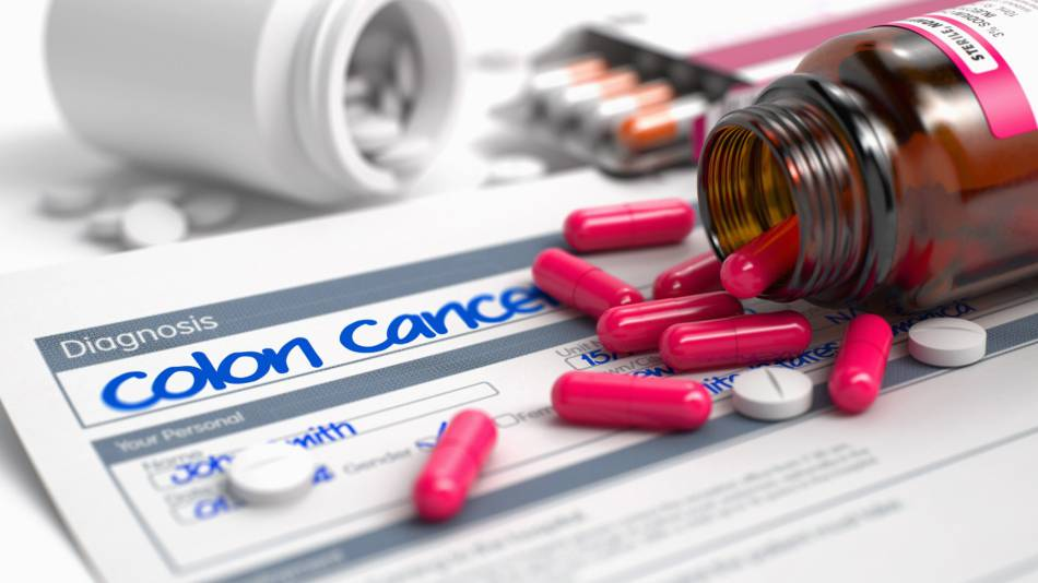 Supplements and Colorectal Cancer Risk -- colon cancer diagnosis form and supplements
