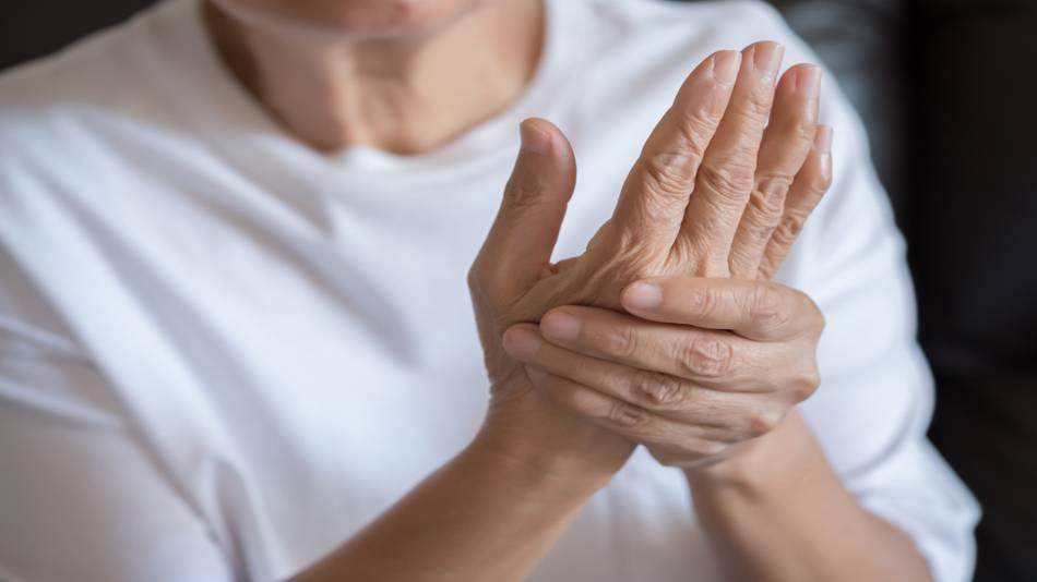 Supplements for Osteoarthritis and Rheumatoid Arthritis -- Women With Arthritic Hands