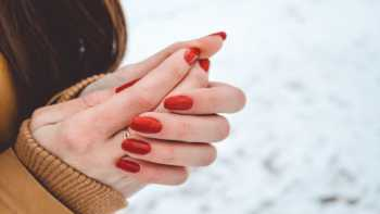 Supplements for Raynaud's Phenomenon -- woman standing outside in snow, with cold, red hands